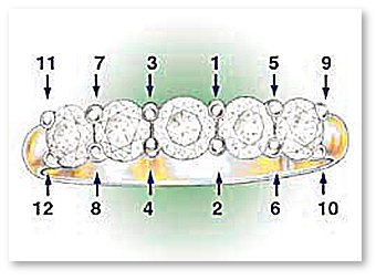 Setting sequence of Common Prong